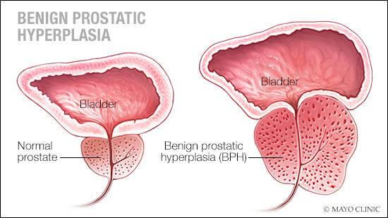 Benign Prostatic